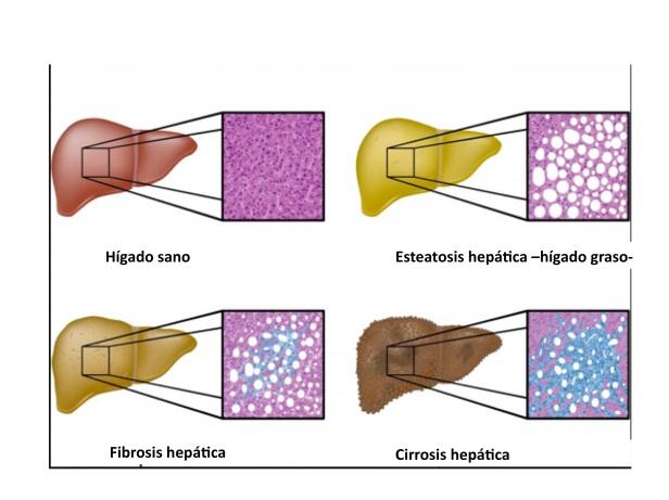 Evolución esteatosis