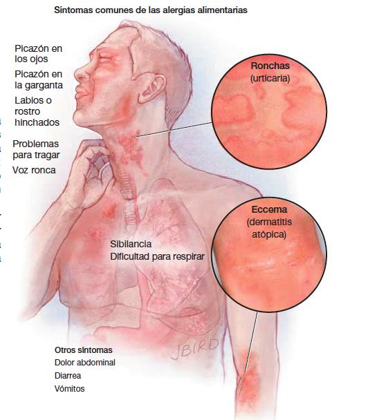 La depilación láser sobre la persona en ivanovo
