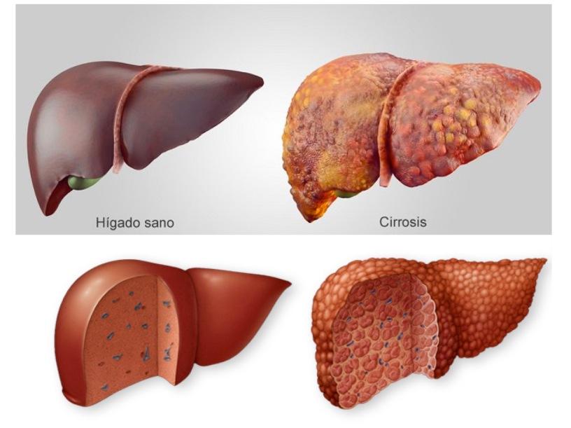 ASKEP SIROSIS HEPATIS PDF